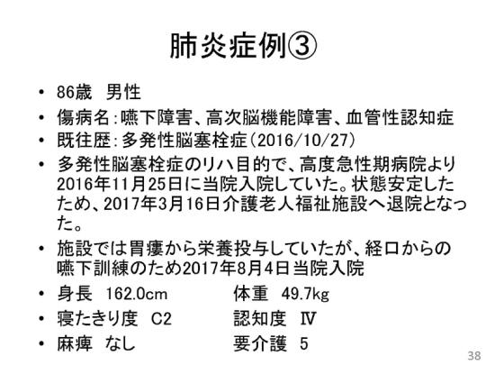 38_171109会見資料