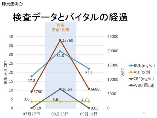 35_171109会見資料