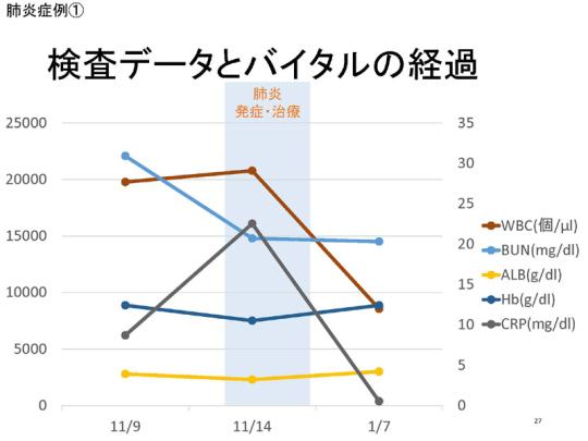 27_171109会見資料